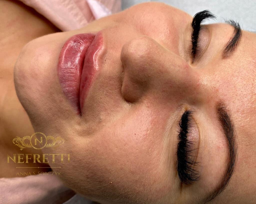 Modelowanie ust Nefretti Szczecin