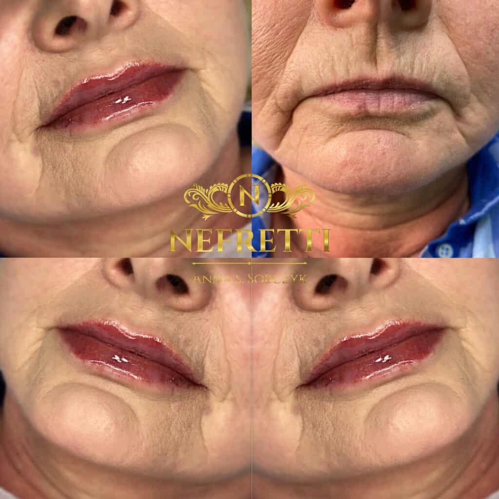 Modelowanie ust salon Nefretti Szczecin